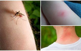 Wat is het verschil tussen een muggenbeet en een insecten- of tekenbeet?