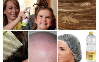 Bestrijding van pediculosis bij een kind en volwassene