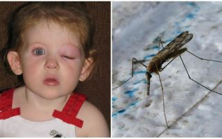 Wat te doen als een kind een gezwollen oog heeft na een muggenbeet