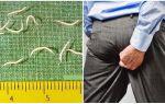 Symptomen en behandeling van wormwormen bij volwassenen