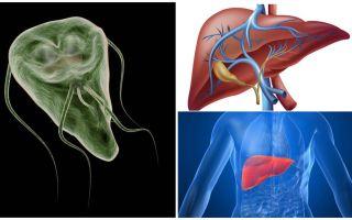 Giardia in de lever - symptomen en behandeling