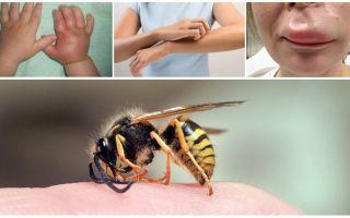 Eerste hulp voor een kind met een wespensteek thuis