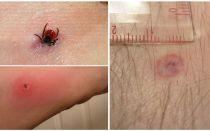 Symptomen en behandeling van een encefalitische tekenbeet bij de mens
