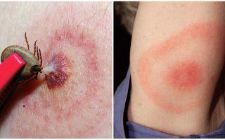 Wat is de ziekte van Lyme, de symptomen, de behandeling en de foto