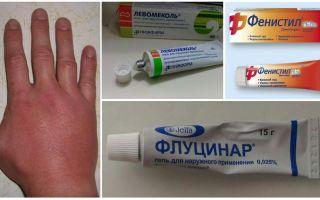 Na een muggenbeet is de hand van een kind of een volwassene opgezwollen