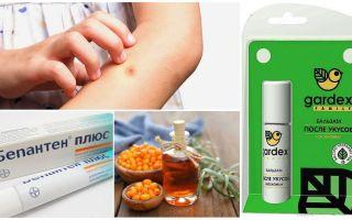 Winkel en folk remedies voor muggenbeten en blackflies