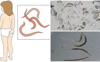 Wat zijn pinworms en hoe ze eruitzien