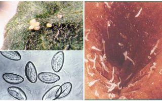 Hoe zien pinworm-eieren eruit?