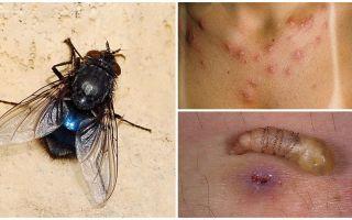 Een vlieg die larven onder de menselijke huid legt