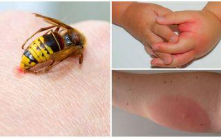 Allergische reactie op wespenst