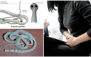 Behandeling en symptomen van runderlintworm bij mensen
