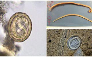Het schema van de levenscyclus van de ontwikkeling van menselijke spoelwormen