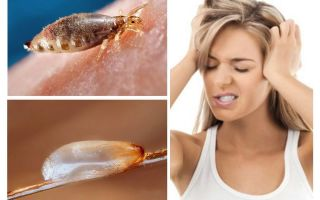 Wat is pediculosis?