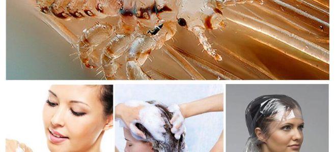 Pediculosis-shampoos voor kinderen en volwassenen