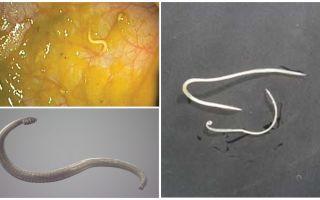 Manier van pinworm-infectie