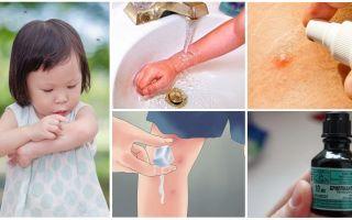 Hoe en wat om muggenbeten te behandelen bij een kind