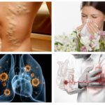Allergie, hartziekten, tuberculose