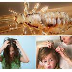 Pediculosis bij kinderen