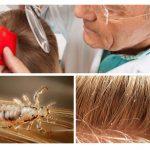Onderzoek van haar voor pediculosis