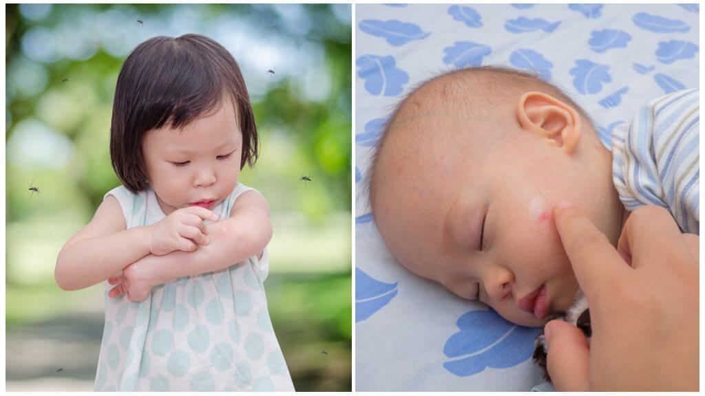 Muggenbeten bij kinderen