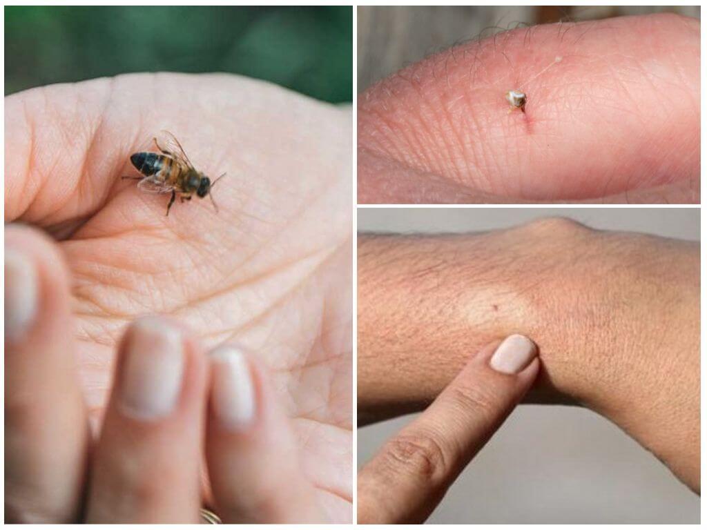 Bee, zijn bijt en angel