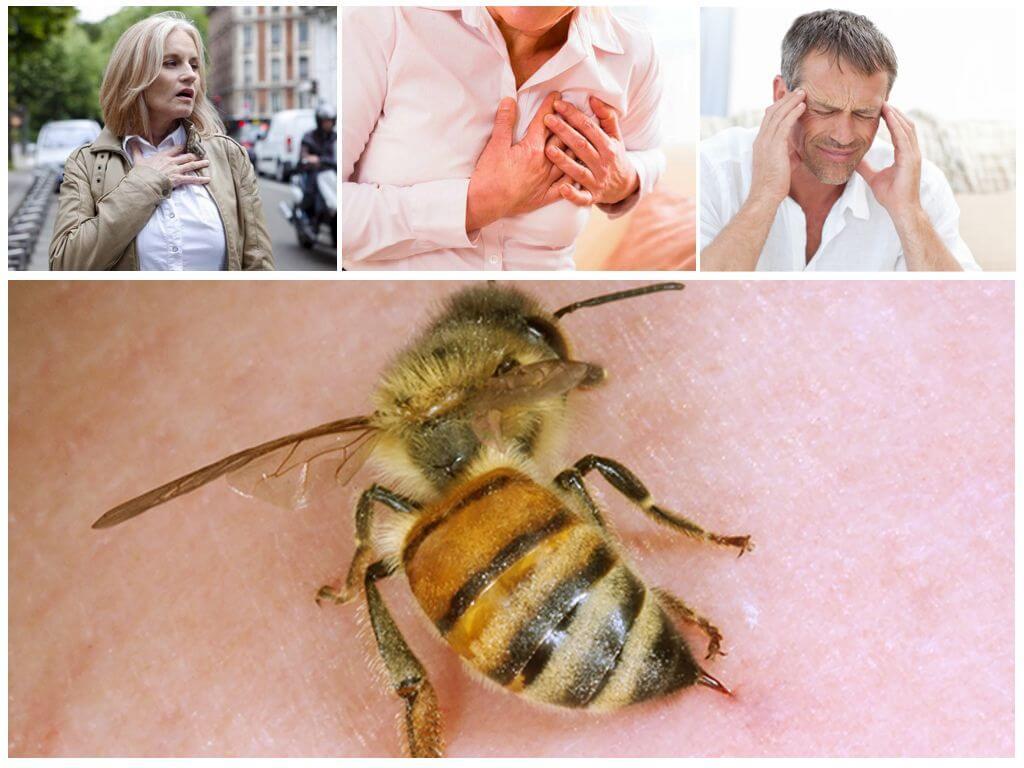 De effecten van een bijensteek