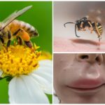 Bijensteek in de lip