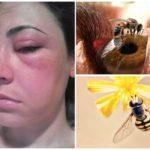 Bijensteek in de ogen