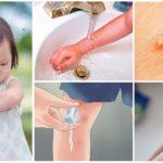 Eerste hulp bij muggenbeten bij kinderen