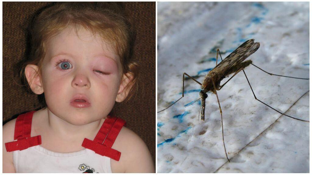 Gezwollen ogen van een kind van een muggenbeet