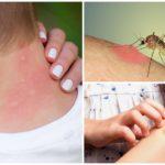 Muggenbeten