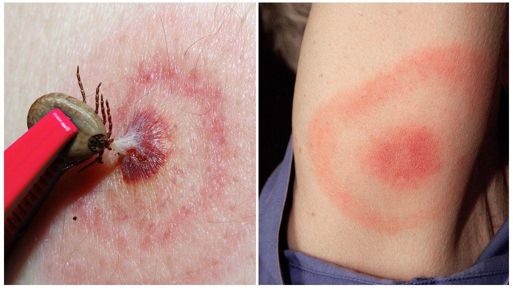 Ziekte van Lyme of door teken overgedragen Borreliose