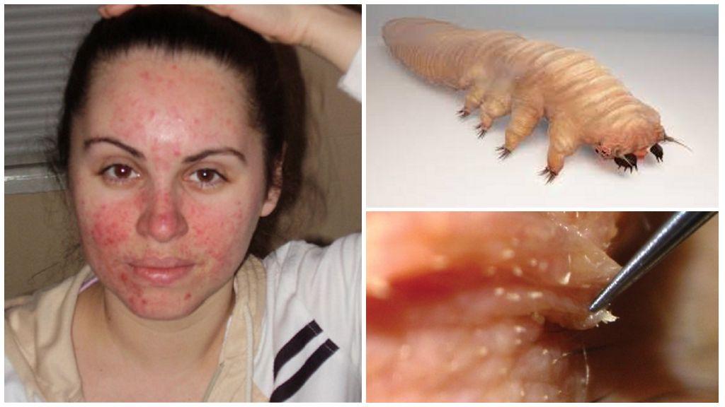Demodecosis op het gezicht