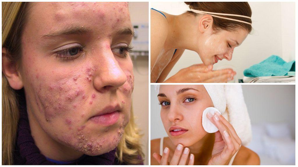 Behandeling van demodicose op het gezicht van een persoon