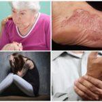 Symptomen van een chronisch stadium van borreliose