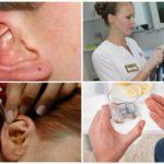 Uitgebreide behandeling van oormijt