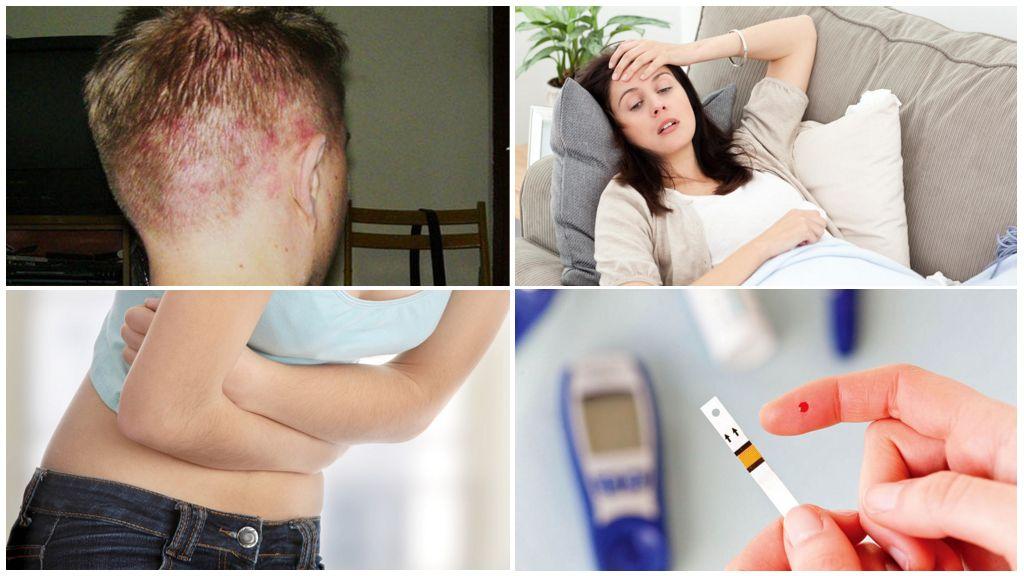 Oorzaken van scalp demodicosis