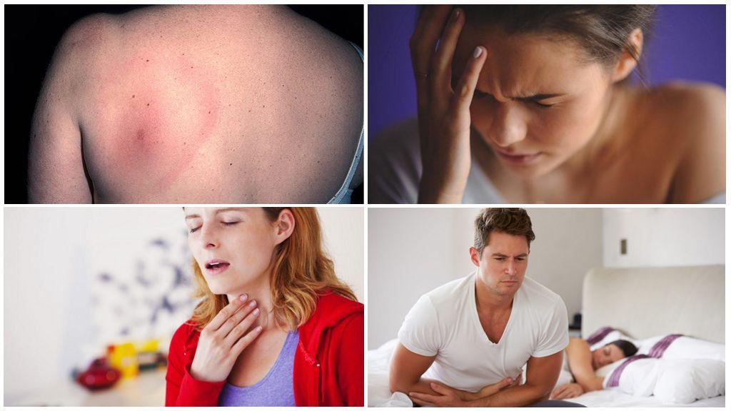 Symptomen van borreliose