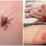 Tick Bite Disease