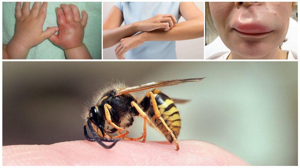 Reactie op een wespensteek bij een kind