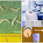 Schrapen op pinworms