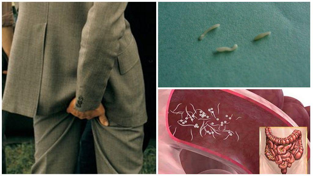 Pinworms bij mensen