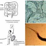 De ontwikkelingscyclus van de parasiet