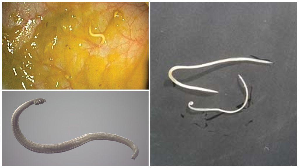 Uiterlijk van pinworms