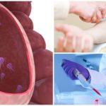 Bloedonderzoek voor Giardia