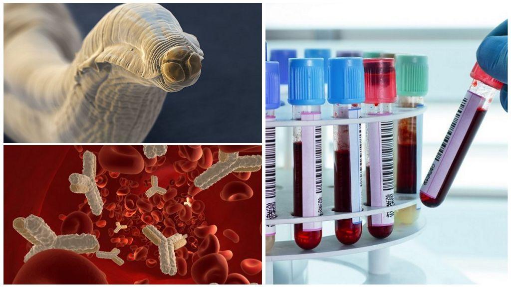 Bloedonderzoek voor toxocarose