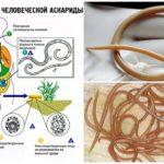 Ascaris levenscyclus