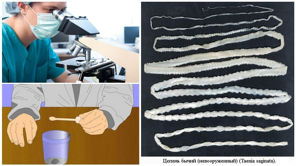 Diagnose van runderlintworm