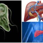 Giardiasis van de lever