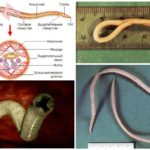 Rondwormstructuur